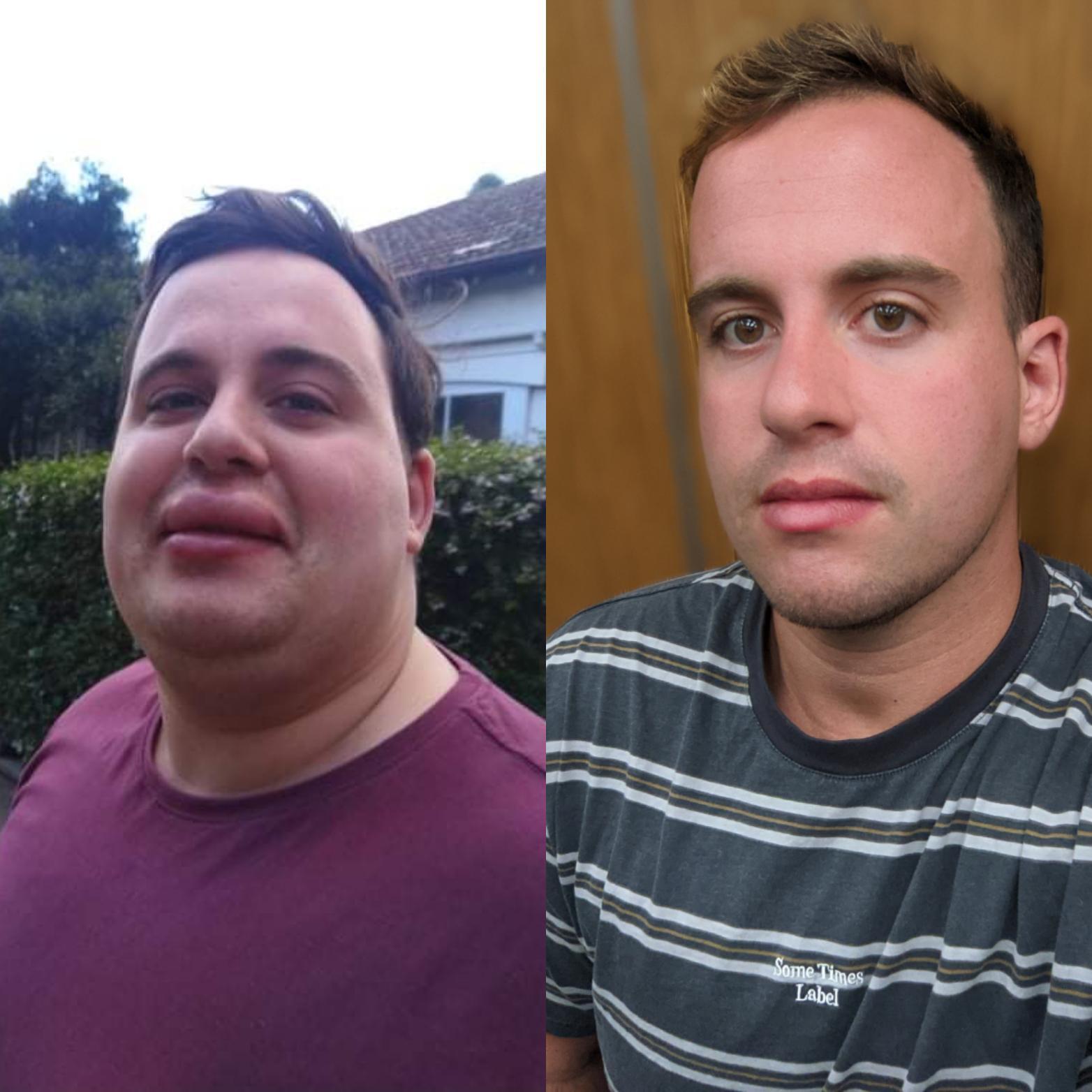 6 feet 1 Male Progress Pics of 135 lbs Weight Loss 350 lbs to 215 lbs