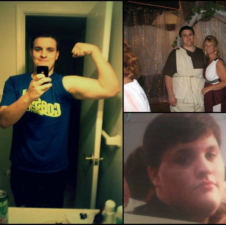 6 foot Male Before and After 142 lbs Weight Loss 350 lbs to 208 lbs
