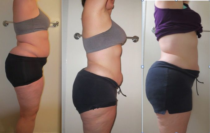 13 lbs Weight Loss 5'11 Female 282 lbs to 269 lbs