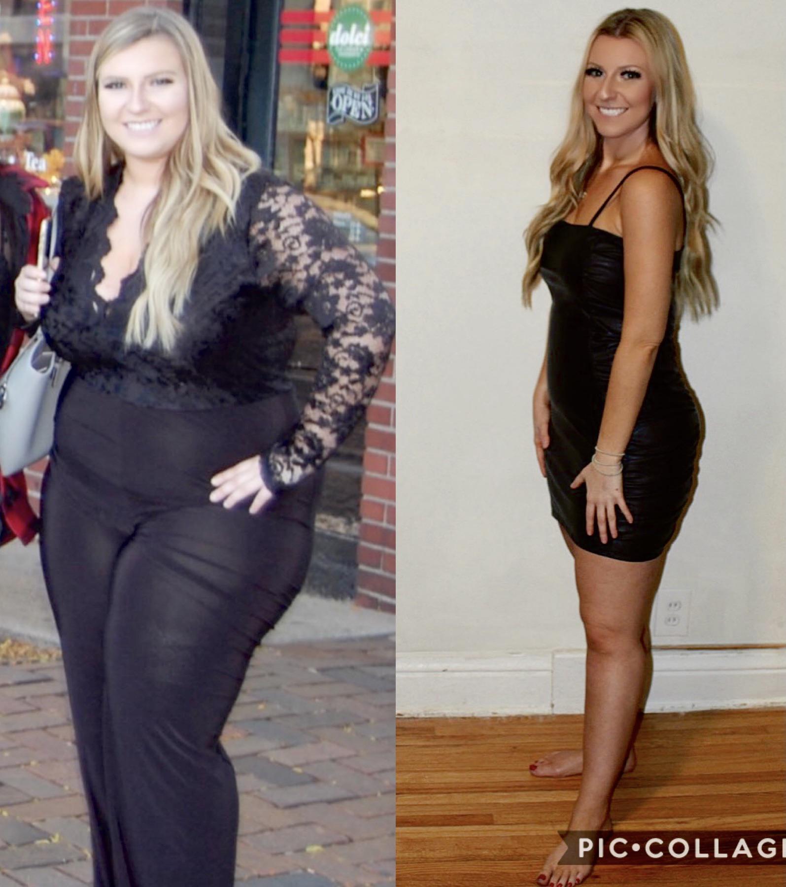 Progress Pics of 105 lbs Weight Loss 5 foot 5 Female 250 lbs to 145 lbs