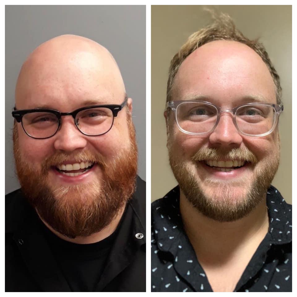 5 foot 11 Male 100 lbs Weight Loss Before and After 300 lbs to 200 lbs