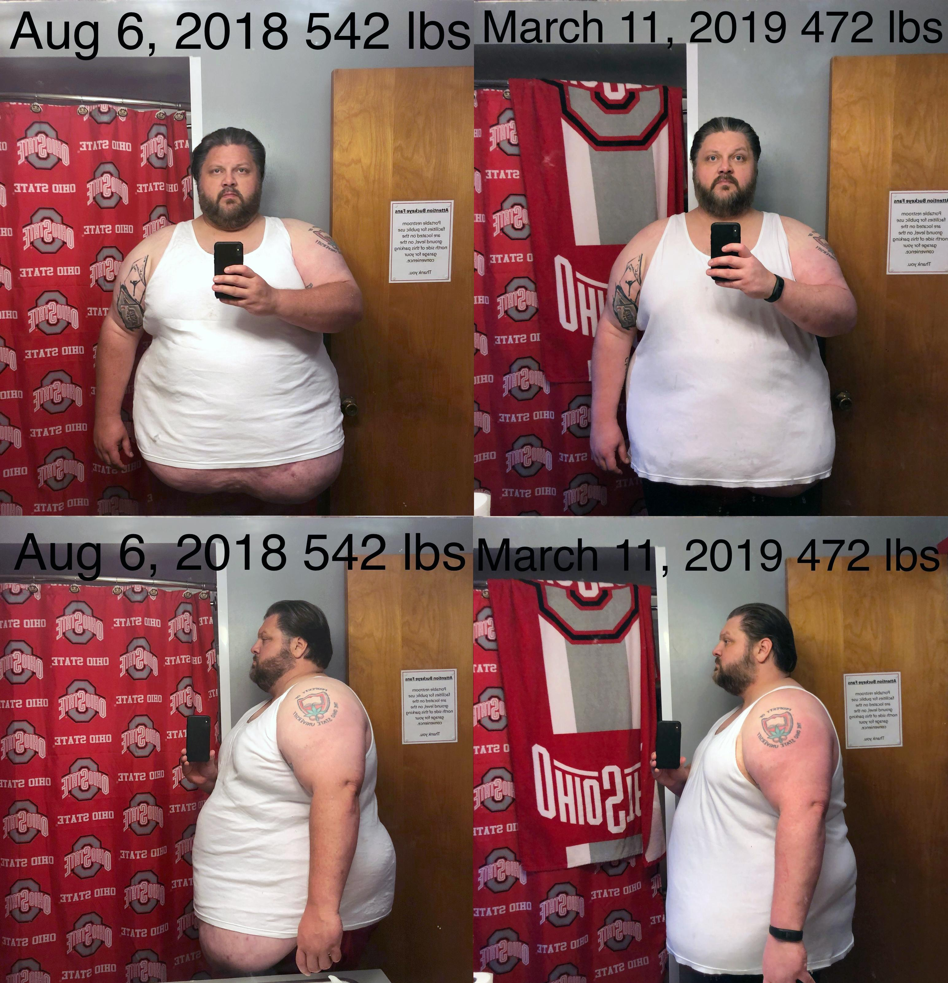 6 foot 1 Male 70 lbs Weight Loss Before and After 542 lbs to 472 lbs