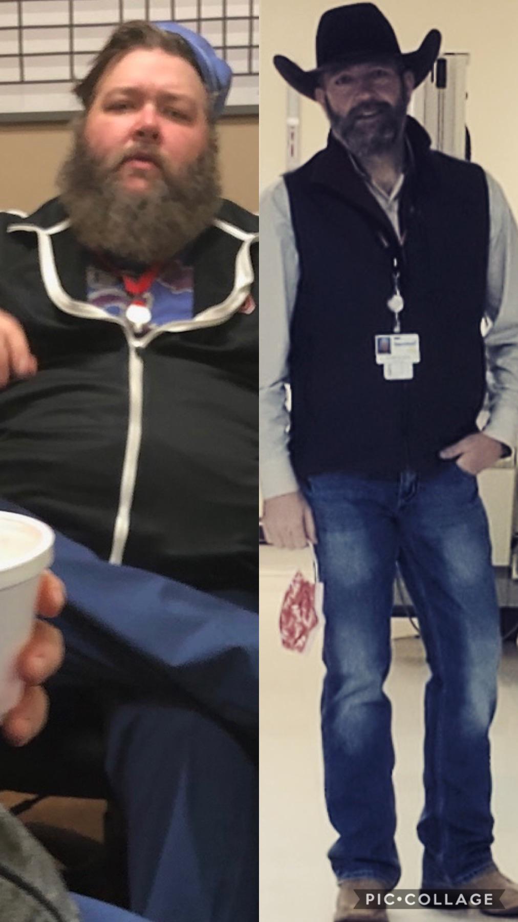 225 lbs Weight Loss 6'1 Male 428 lbs to 203 lbs