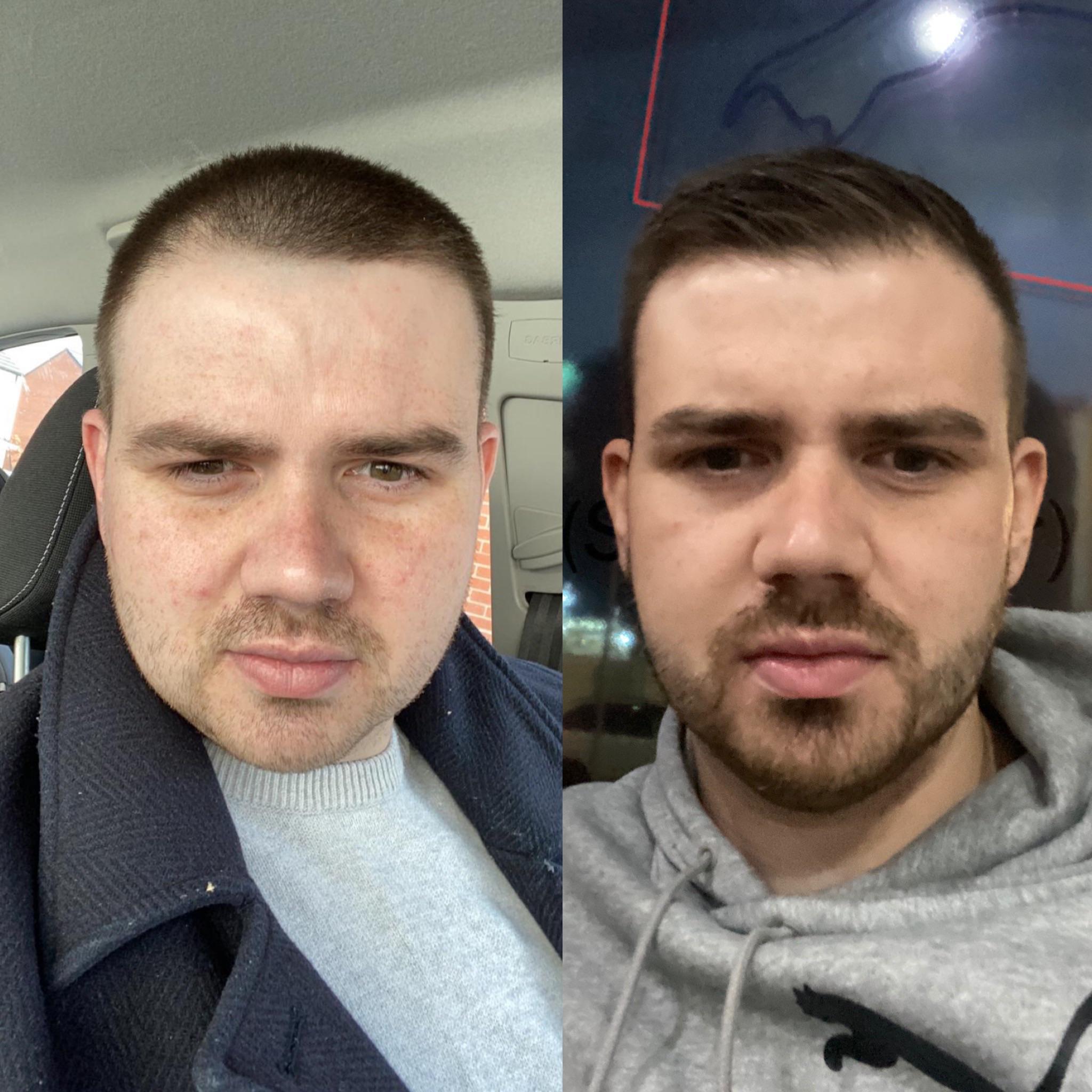 5 feet 10 Male Progress Pics of 61 lbs Fat Loss 276 lbs to 215 lbs