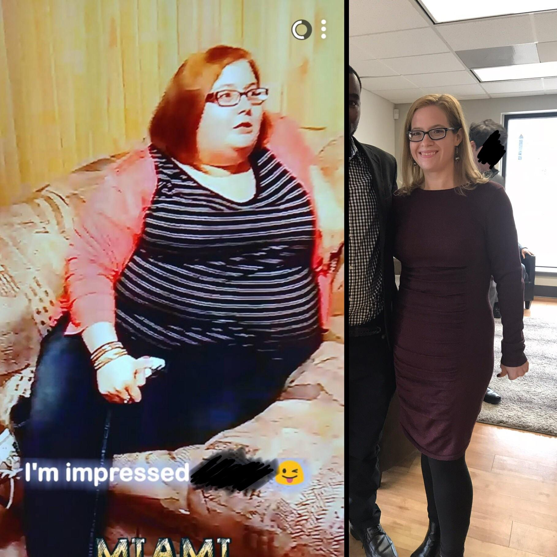 Before and After 182 lbs Weight Loss 5 foot 3 Female 322 lbs to 140 lbs