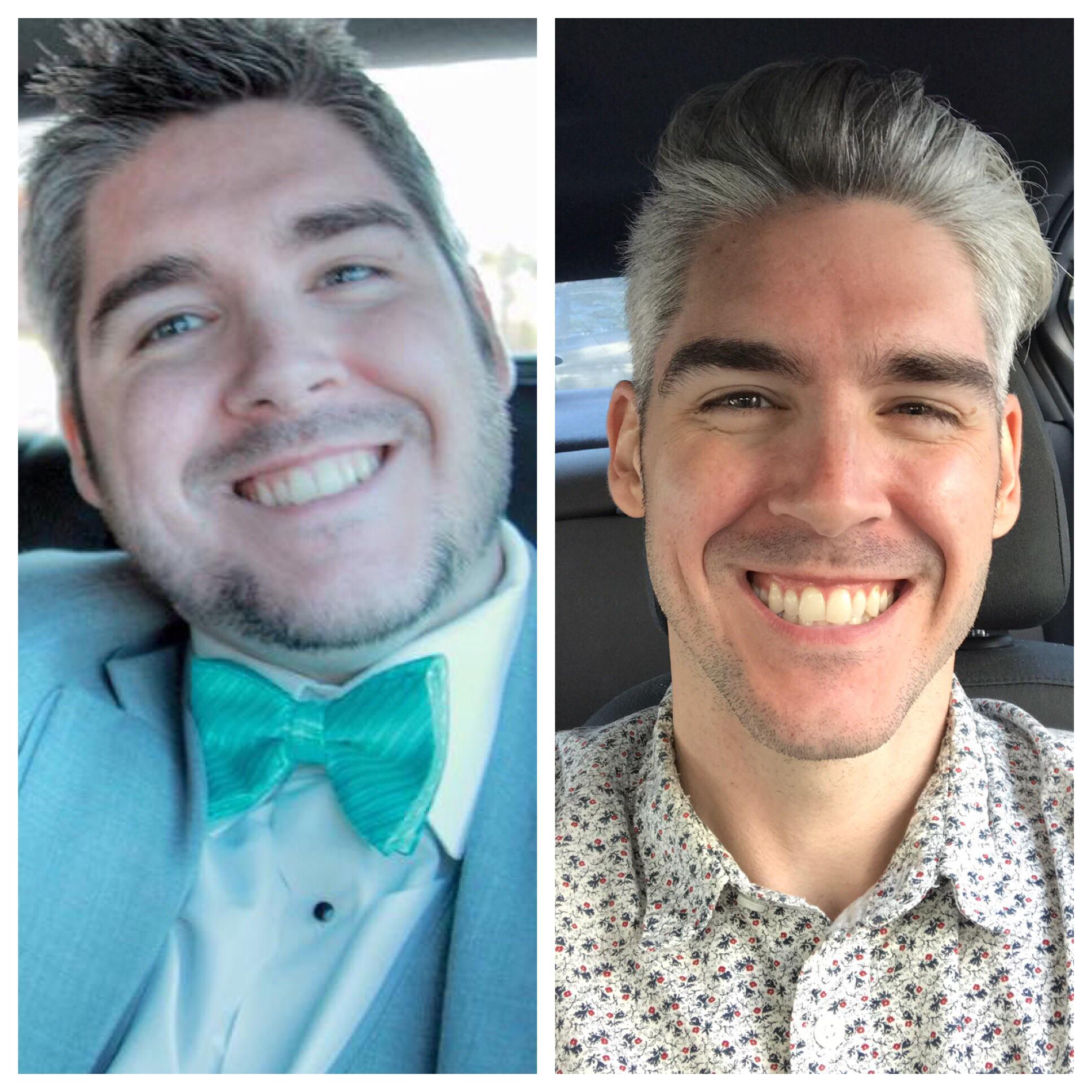 Progress Pics of 112 lbs Fat Loss 5 foot 10 Male 275 lbs to 163 lbs