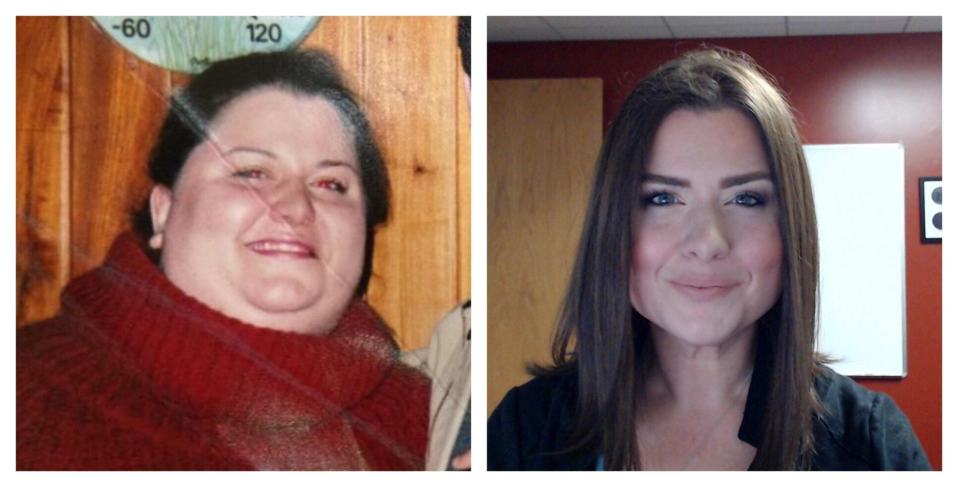 220 lbs Fat Loss Before and After 5 foot 7 Female 408 lbs to 188 lbs