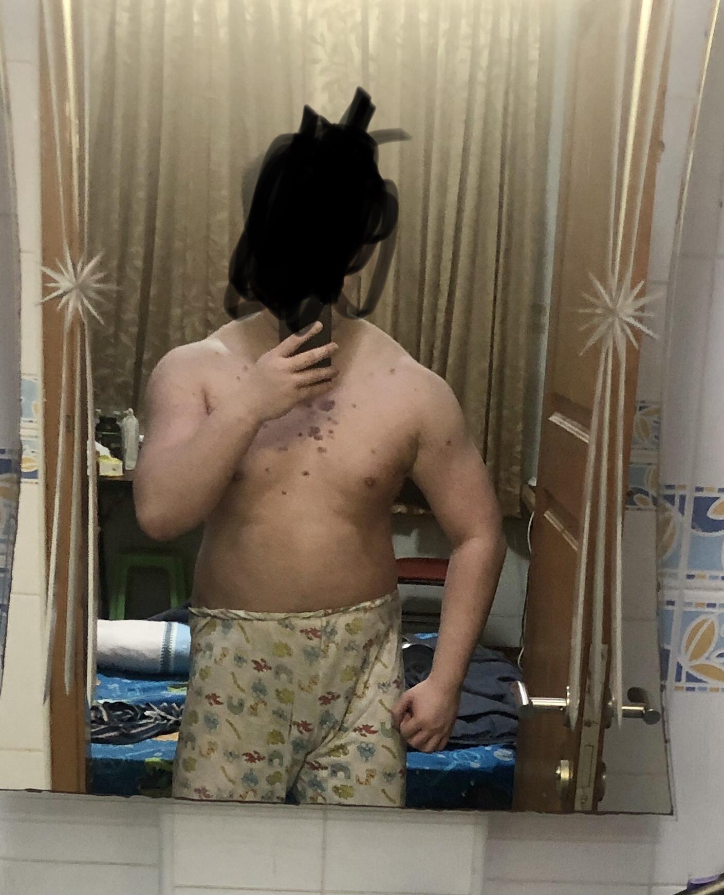 5'8 Male Progress Pics of 35 lbs Weight Gain 155 lbs to 190 lbs