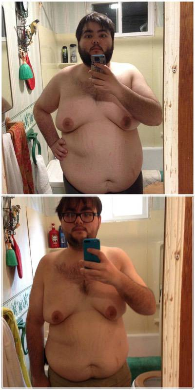 5'8 Male Before and After 122 lbs Fat Loss 311 lbs to 189 lbs