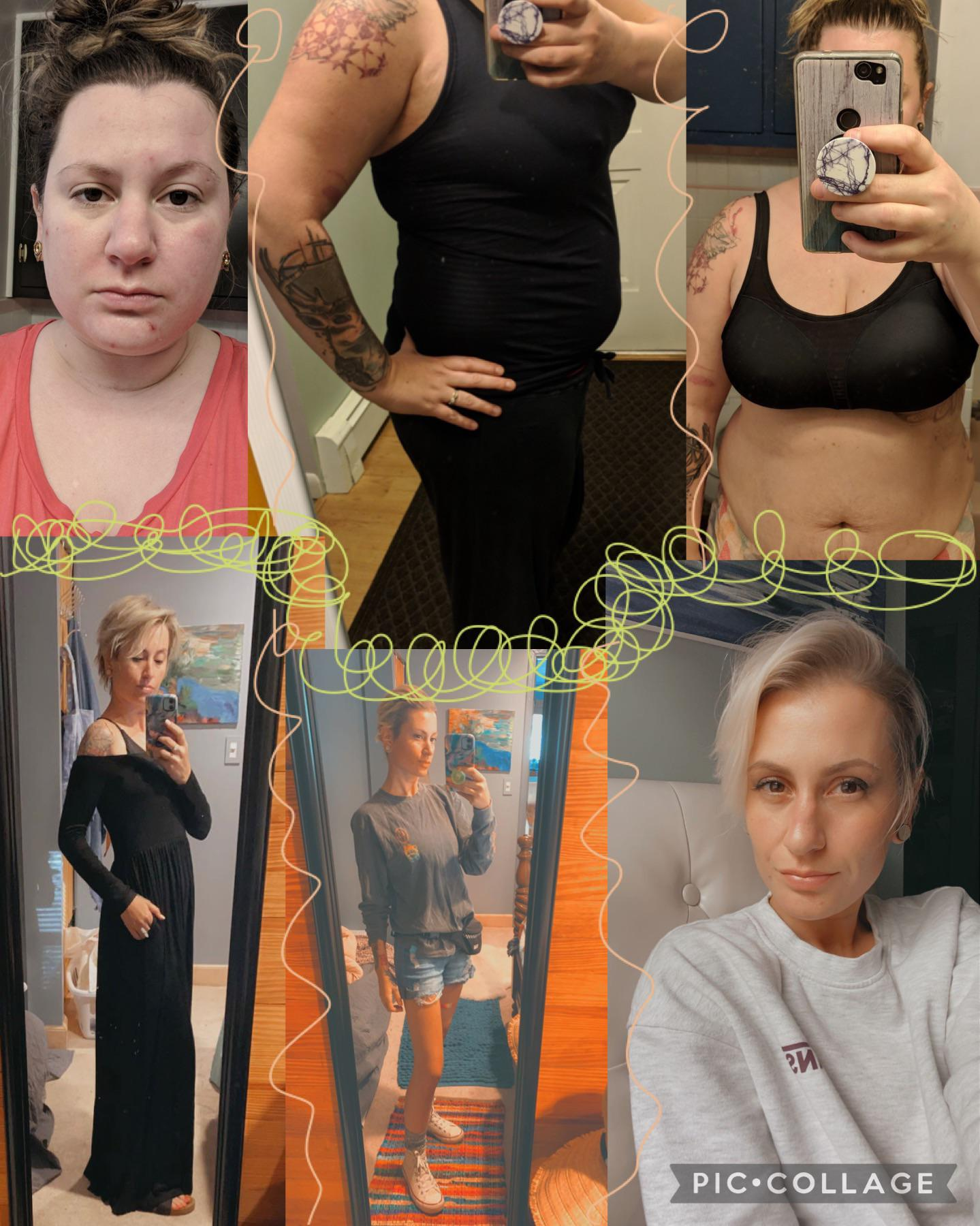 5 foot 2 Female Before and After 145 lbs Weight Loss 250 lbs to 105 lbs
