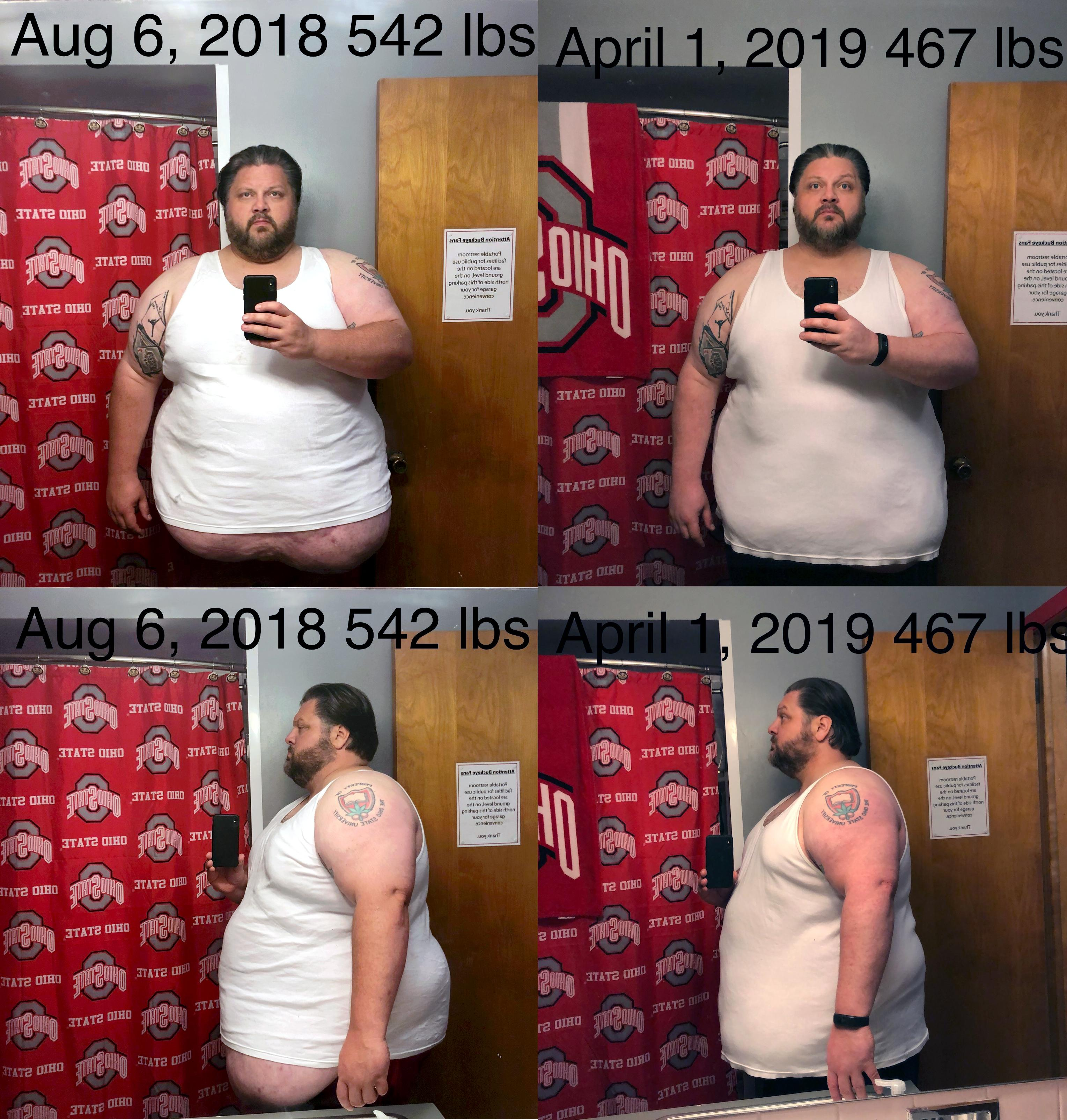 Progress Pics of 75 lbs Fat Loss 6'1 Male 542 lbs to 467 lbs