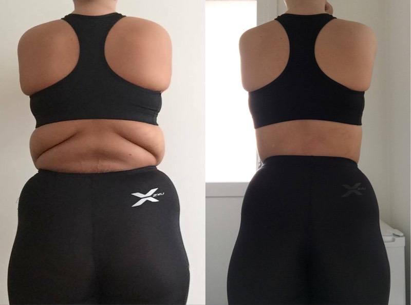 5'9 Female Progress Pics of 110 lbs Weight Loss 300 lbs to 190 lbs