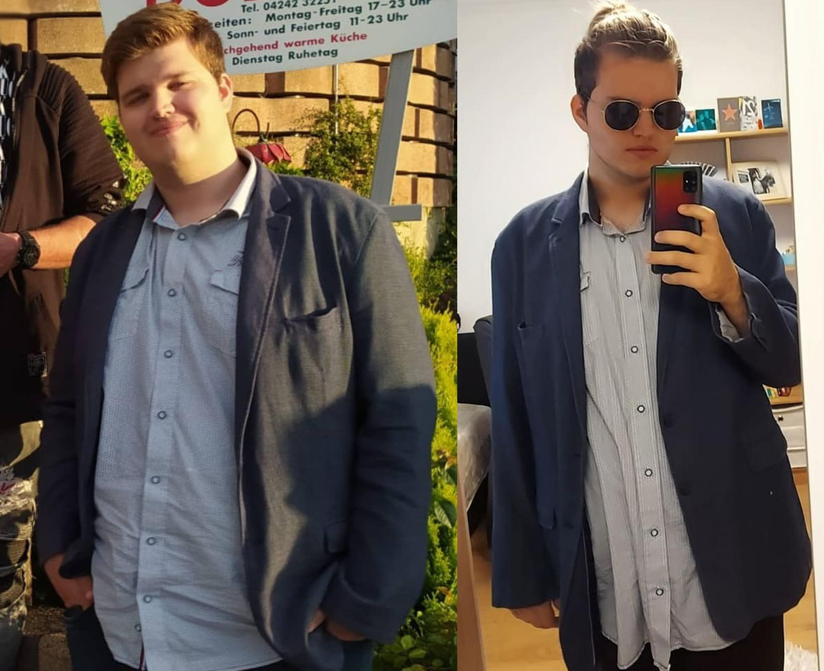 6'4 Male 86 lbs Weight Loss Before and After 326 lbs to 240 lbs