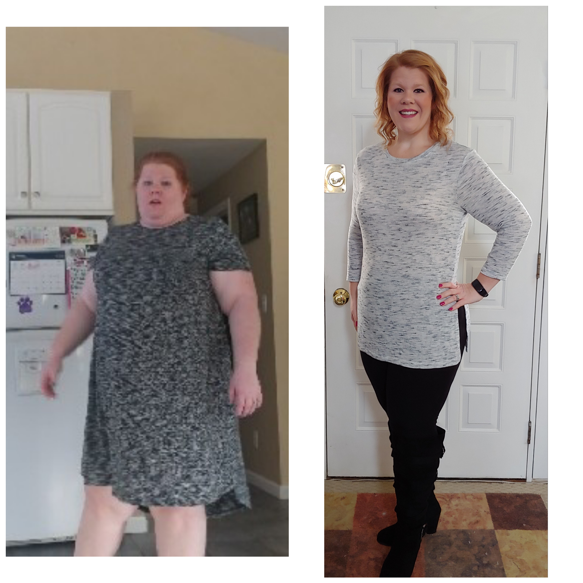 127 lbs Weight Loss Before and After 5'7 Female 338 lbs to 211 lbs