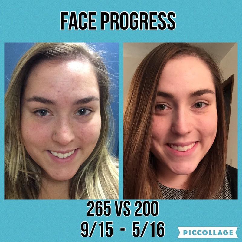Progress Pics of 65 lbs Fat Loss 5 foot 1 Female 265 lbs to 200 lbs