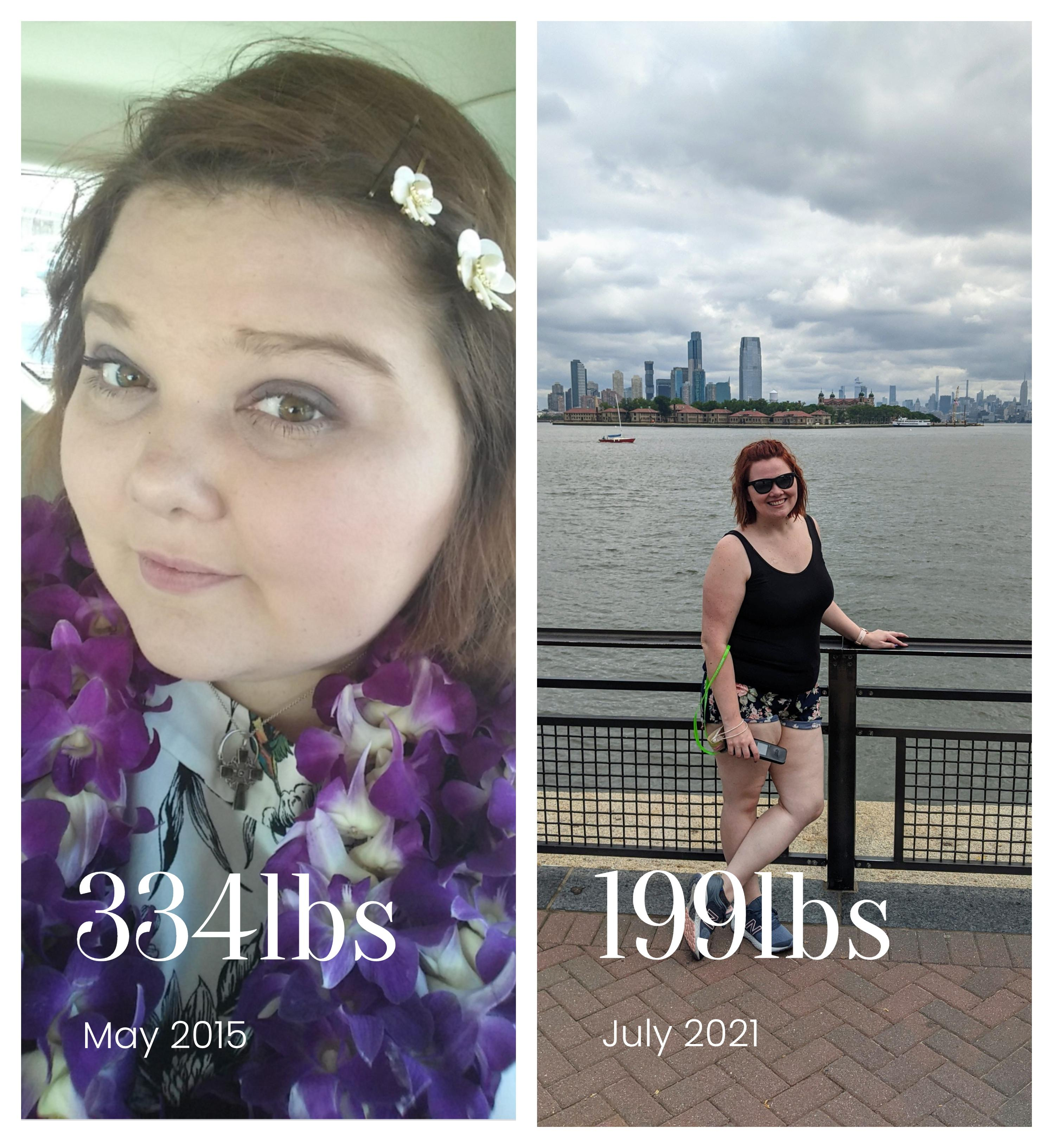 5 foot 7 Female 135 lbs Weight Loss Before and After 334 lbs to 199 lbs