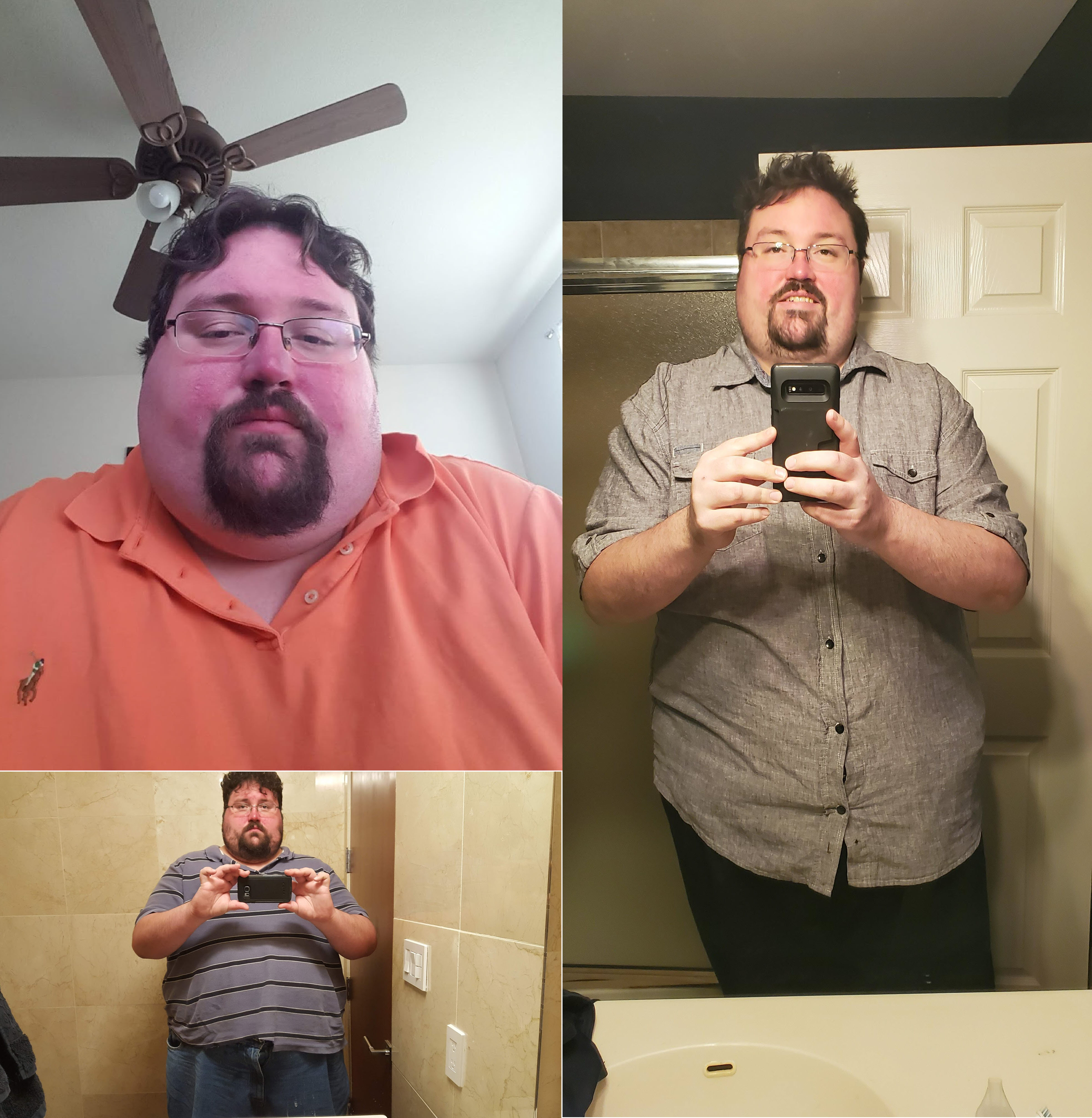 6 feet 3 Male 100 lbs Fat Loss Before and After 475 lbs to 375 lbs