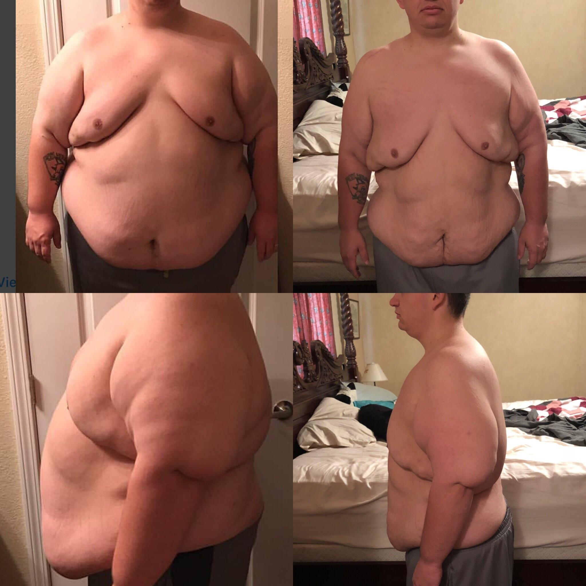 148 lbs Fat Loss Before and After 5'7 Male 448 lbs to 300 lbs