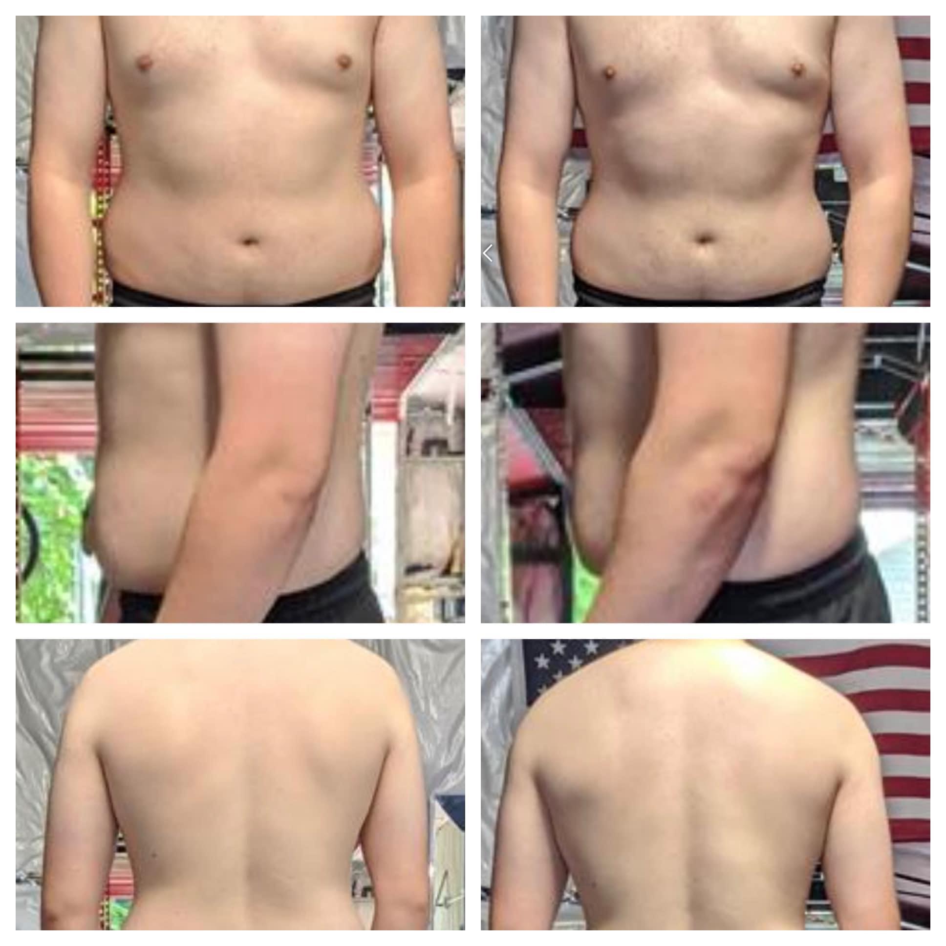 Progress Pics of 5 lbs Fat Loss 6 foot Male 200 lbs to 195 lbs
