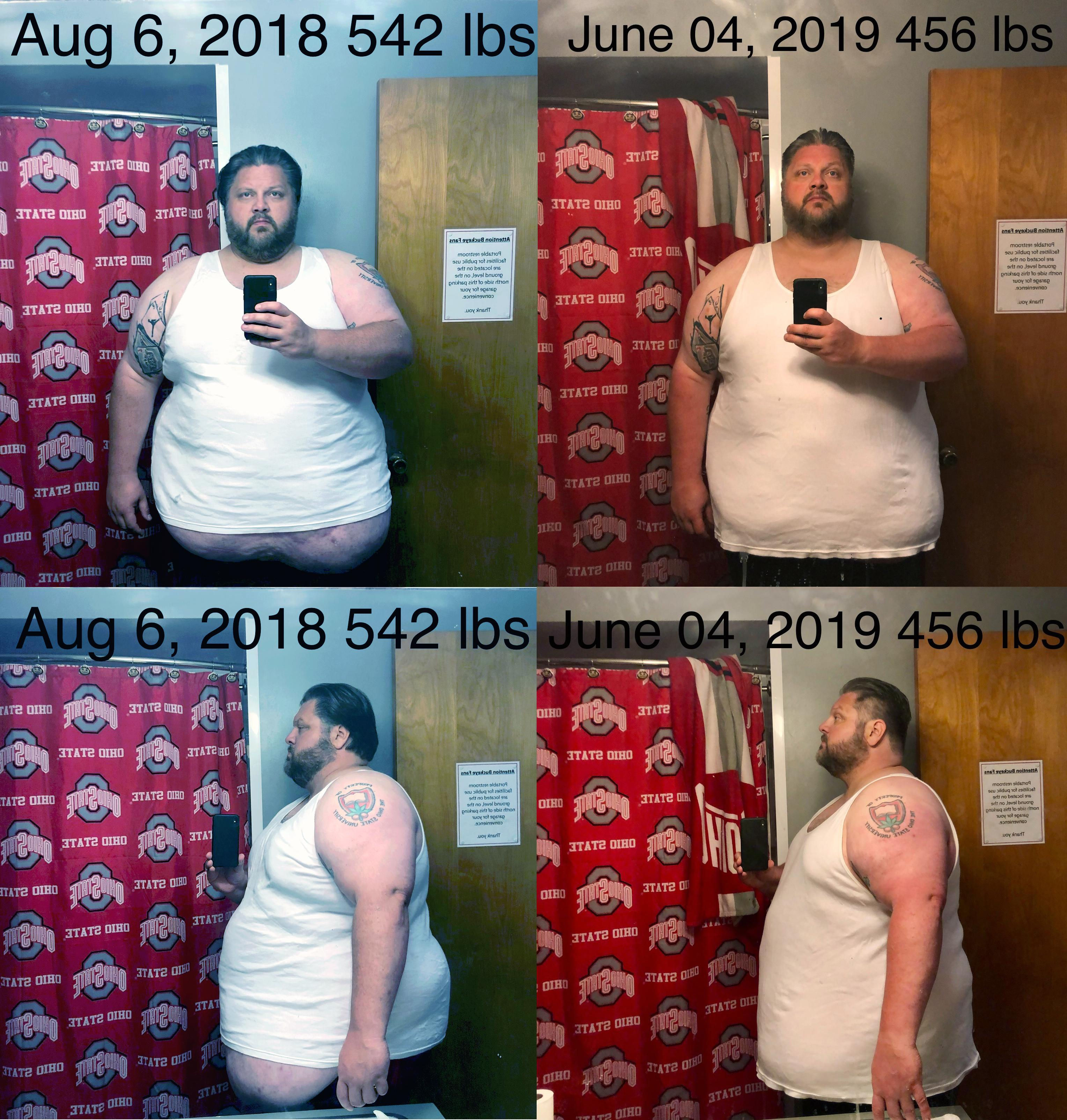 6 foot 1 Male 86 lbs Fat Loss Before and After 542 lbs to 456 lbs