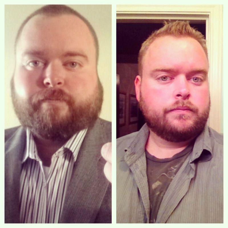 Progress Pics of 56 lbs Weight Loss 6 foot Male 389 lbs to 333 lbs