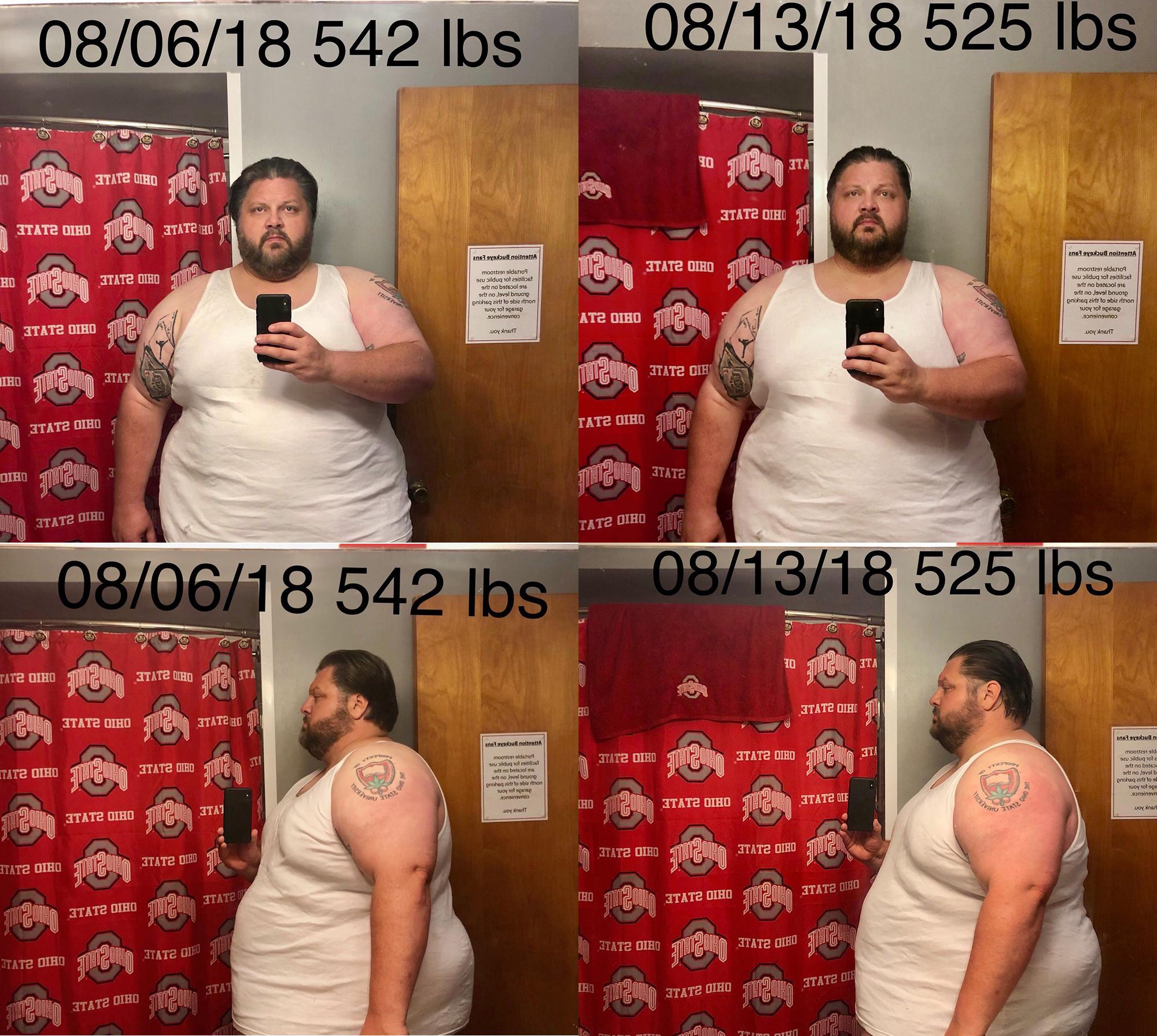 Progress Pics of 17 lbs Weight Loss 6 feet 1 Male 542 lbs to 525 lbs