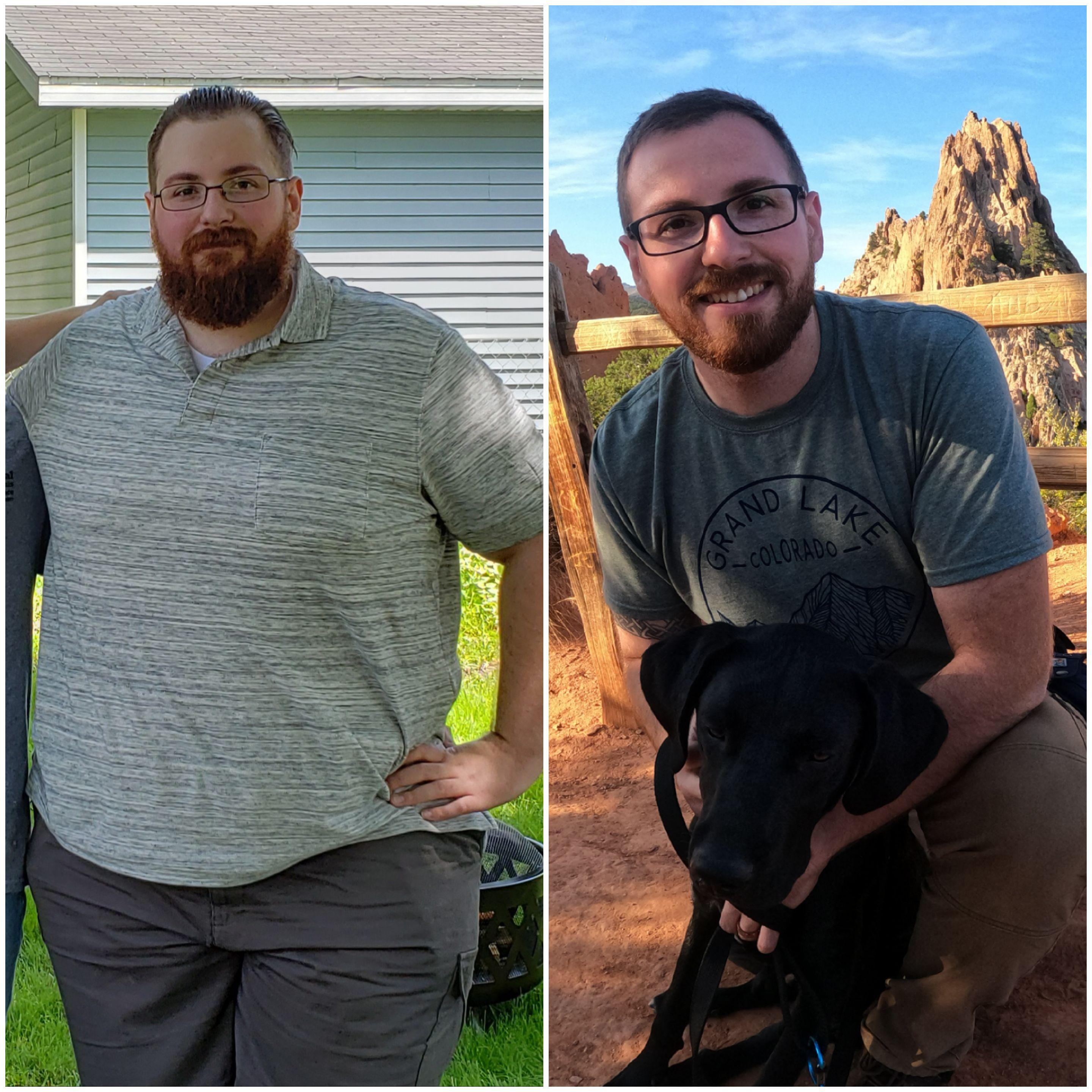 5 feet 11 Male 152 lbs Weight Loss Before and After 377 lbs to 225 lbs