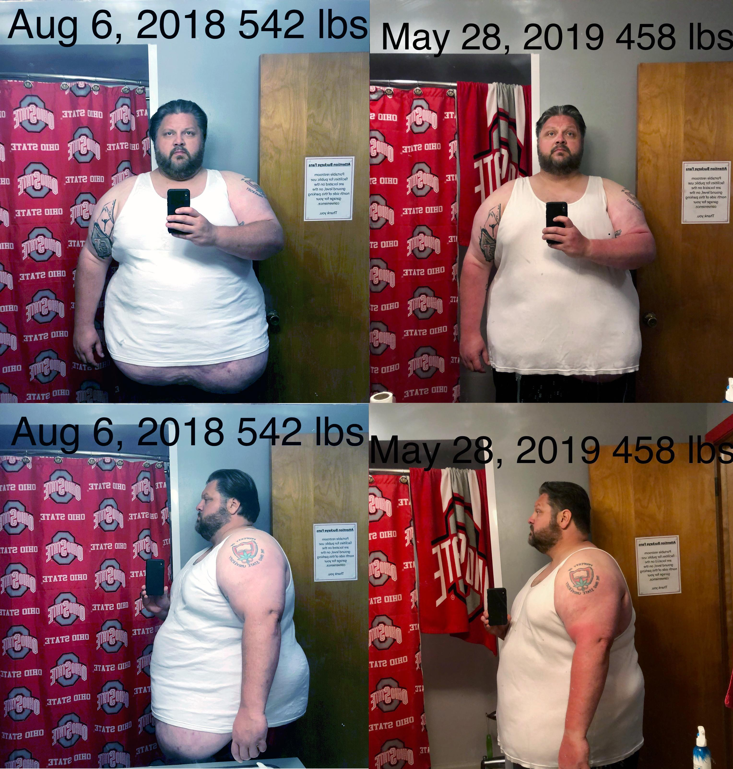 6 foot 1 Male 84 lbs Weight Loss Before and After 542 lbs to 458 lbs