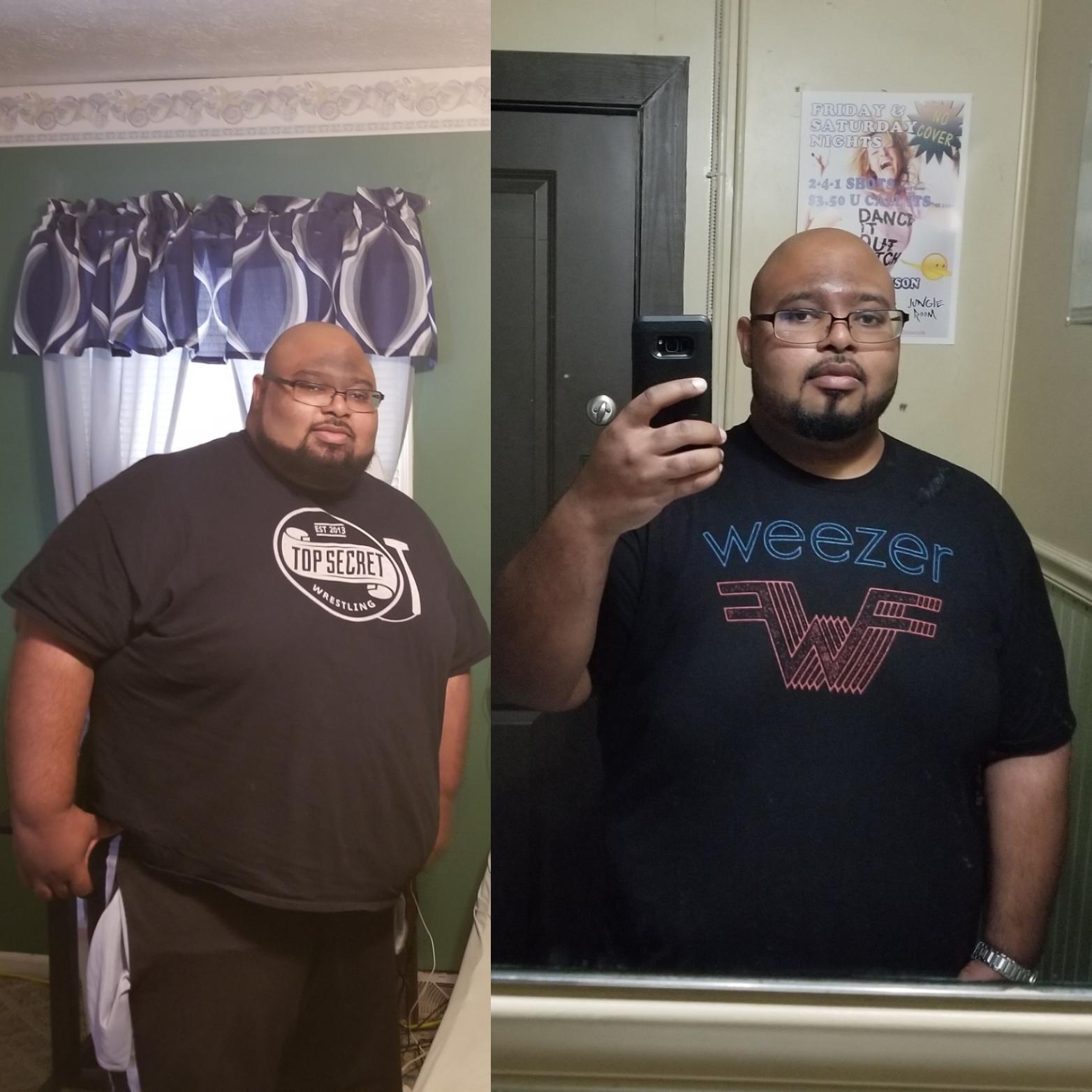 Progress Pics of 157 lbs Weight Loss 5 feet 10 Male 486 lbs to 329 lbs