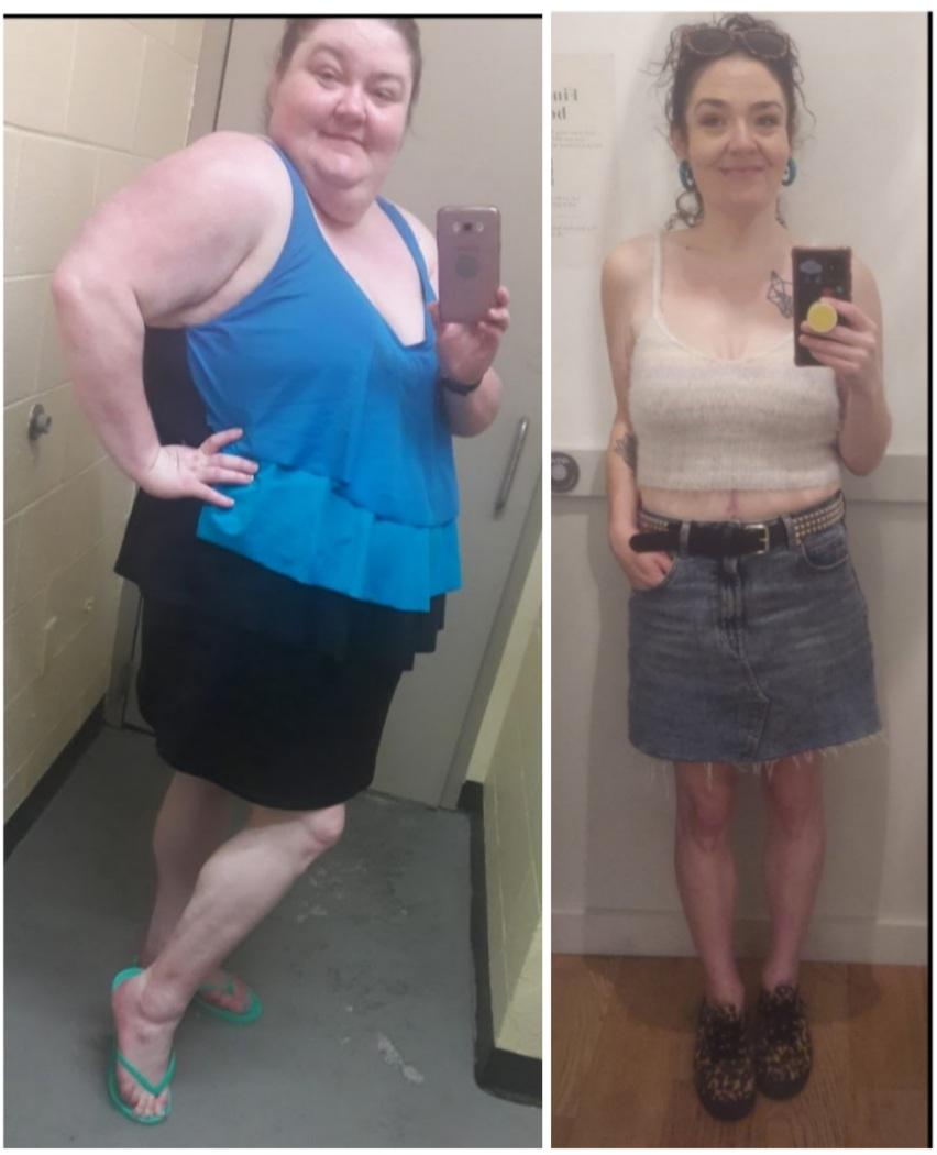 Progress Pics of 202 lbs Weight Loss 5 feet 8 Female 353 lbs to 151 lbs