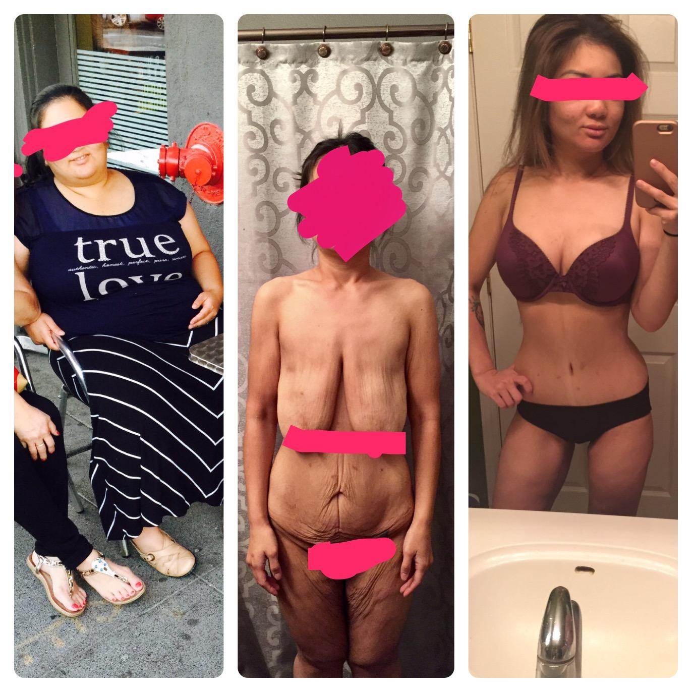 5'1 Female 157 lbs Weight Loss Before and After 270 lbs to 113 lbs