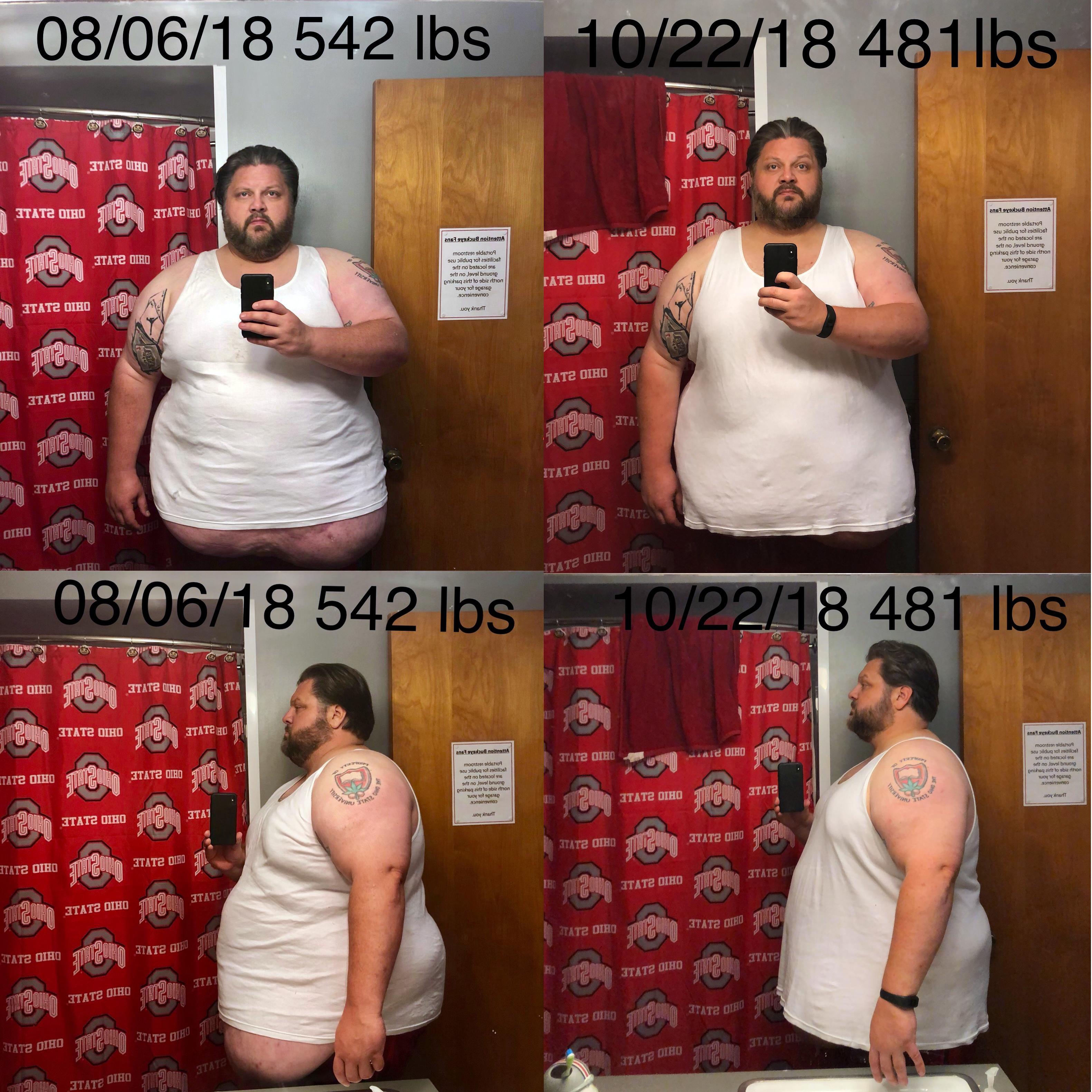 Progress Pics of 61 lbs Weight Loss 6 foot 1 Male 542 lbs to 481 lbs