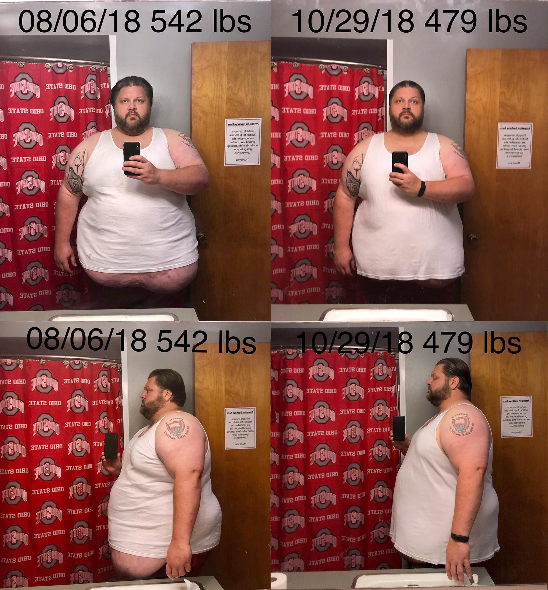 Before and After 63 lbs Fat Loss 6 foot 1 Male 542 lbs to 479 lbs