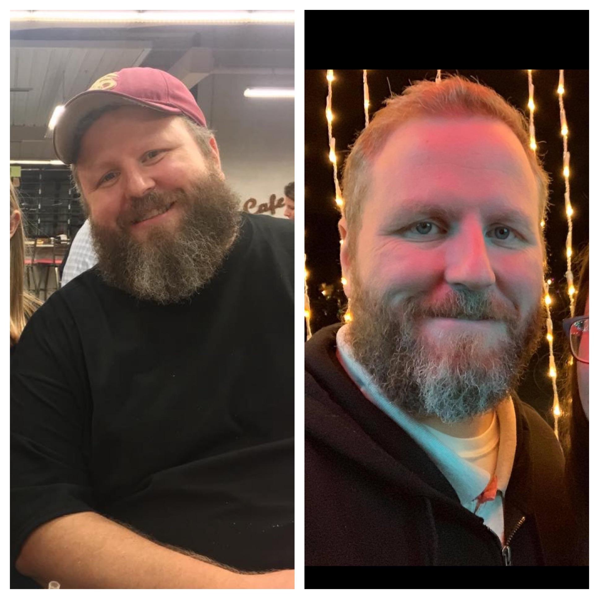128 lbs Weight Loss 6 foot Male 387 lbs to 259 lbs