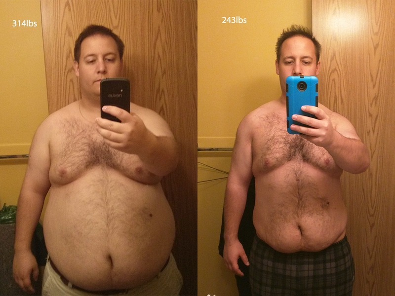 Before and After 71 lbs Fat Loss 5 feet 9 Male 314 lbs to 243 lbs