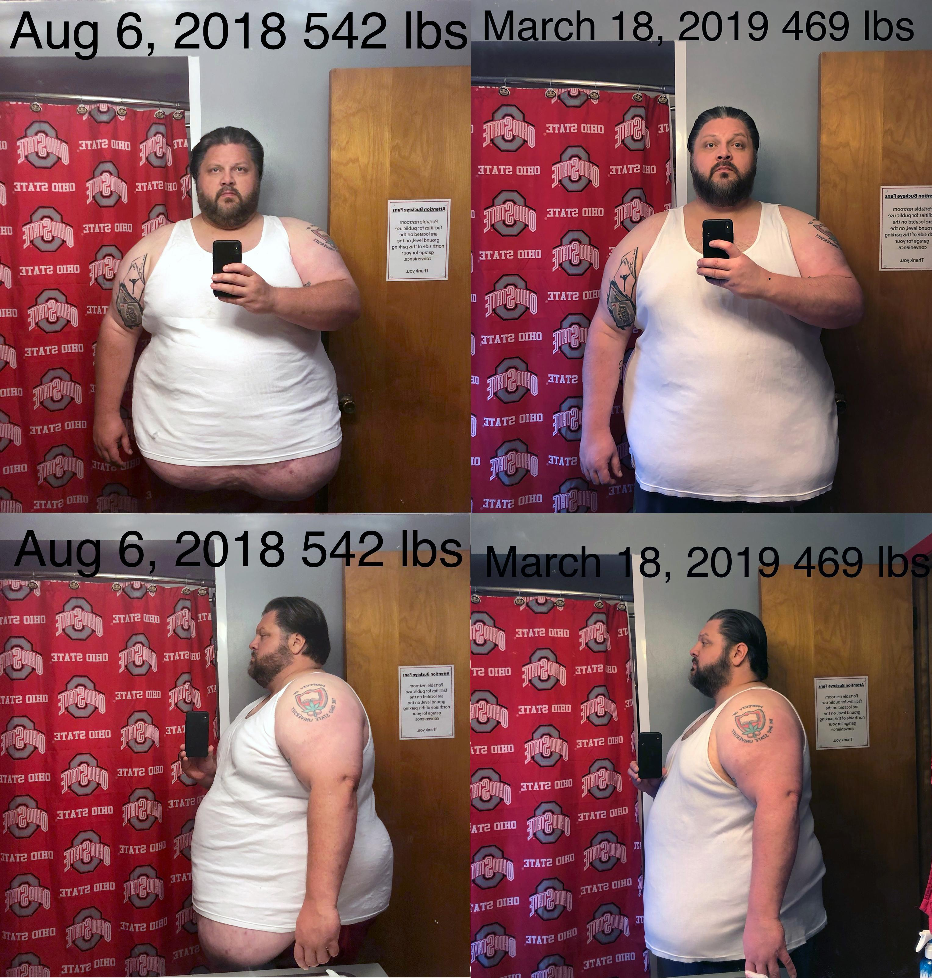 6 foot 1 Male 73 lbs Fat Loss Before and After 542 lbs to 469 lbs