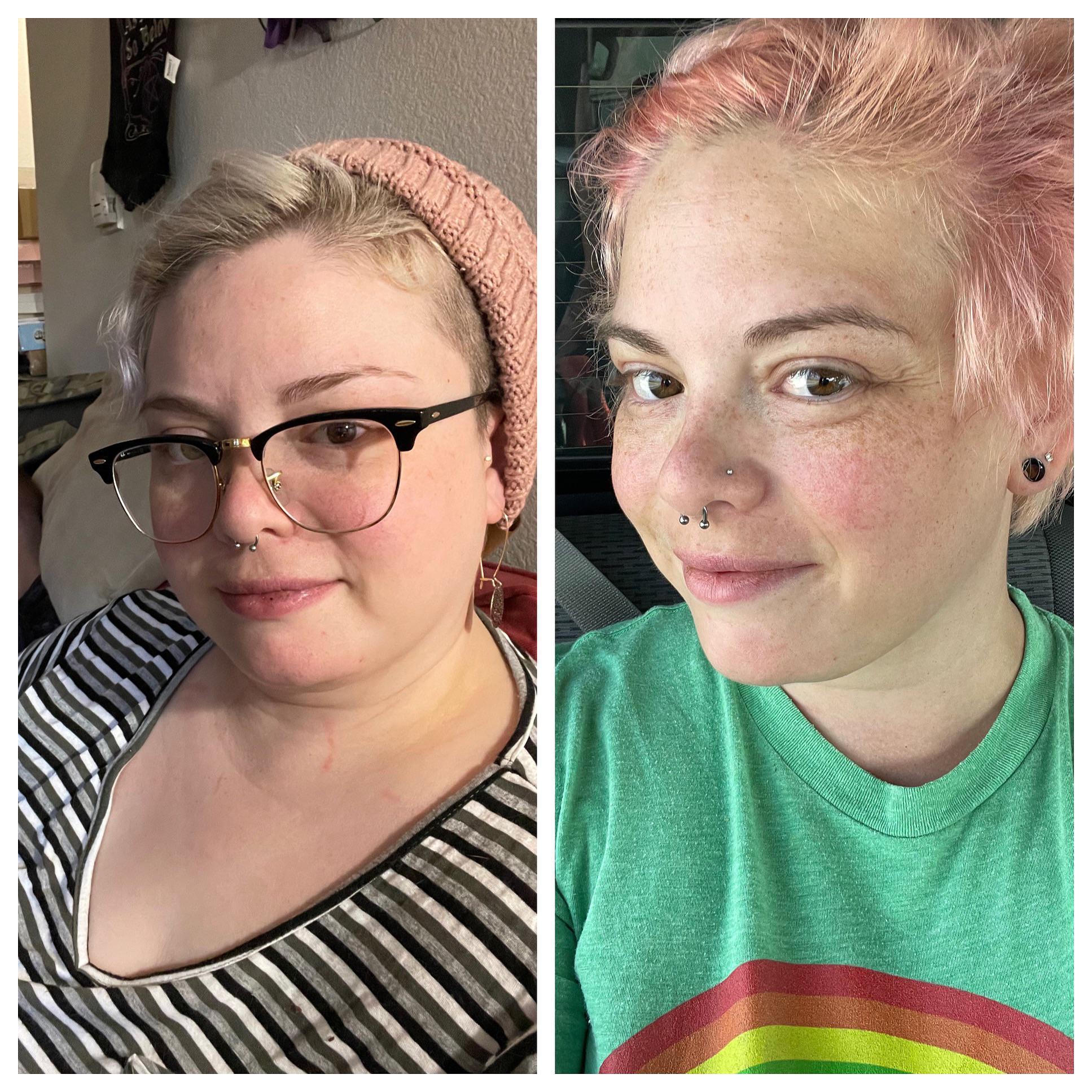 4 foot 11 Female Progress Pics of 28 lbs Fat Loss 198 lbs to 170 lbs