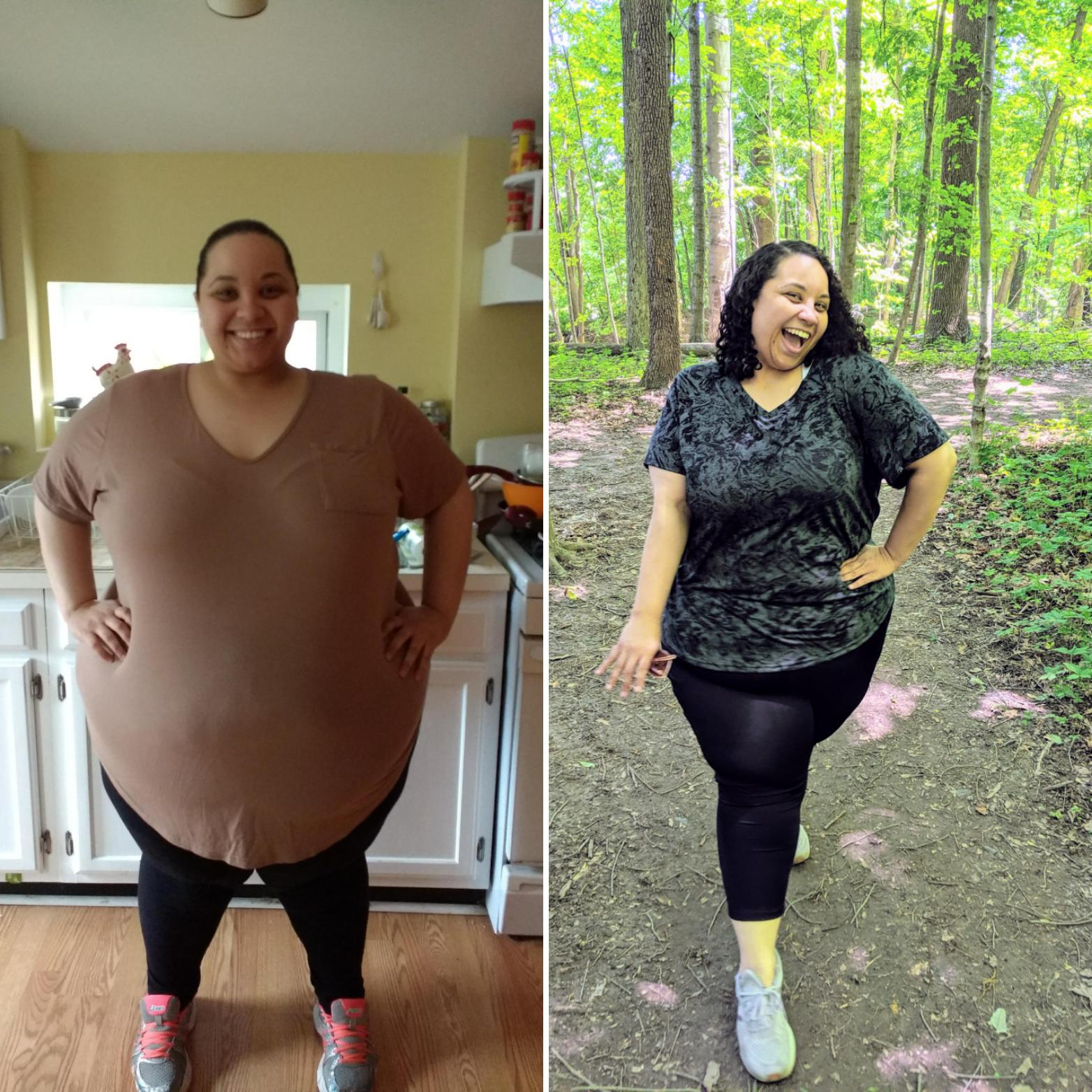 5 feet 3 Female Before and After 306 lbs Weight Loss 443 lbs to 137 lbs