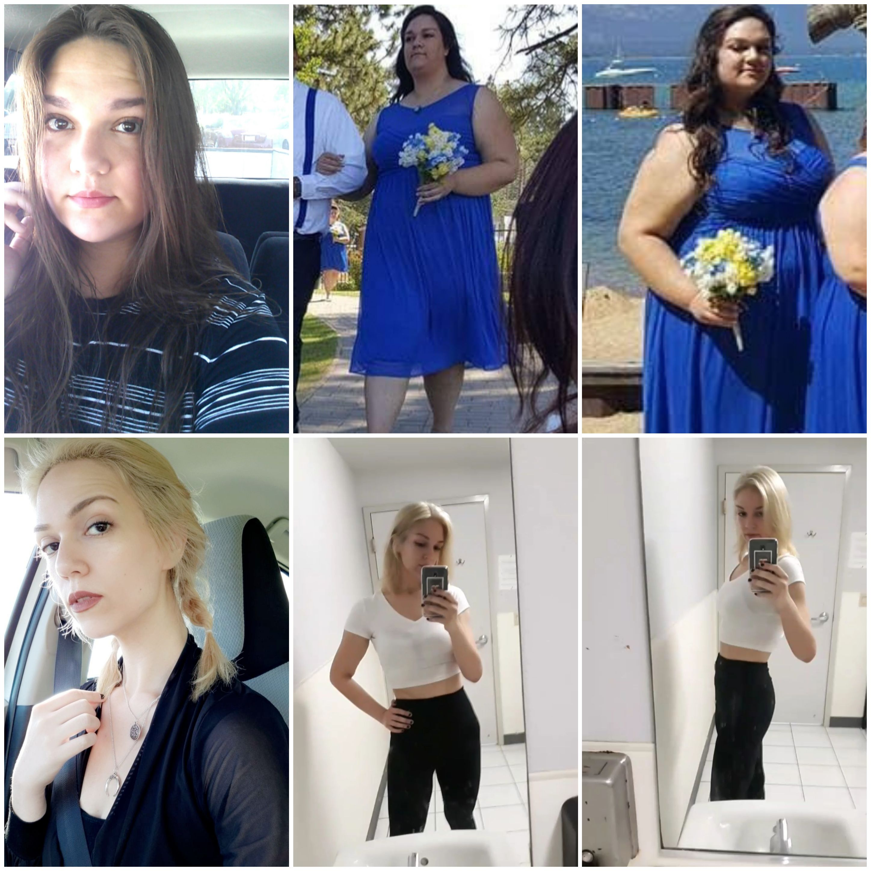 6'1 Female 170 lbs Weight Loss Before and After 326 lbs to 156 lbs