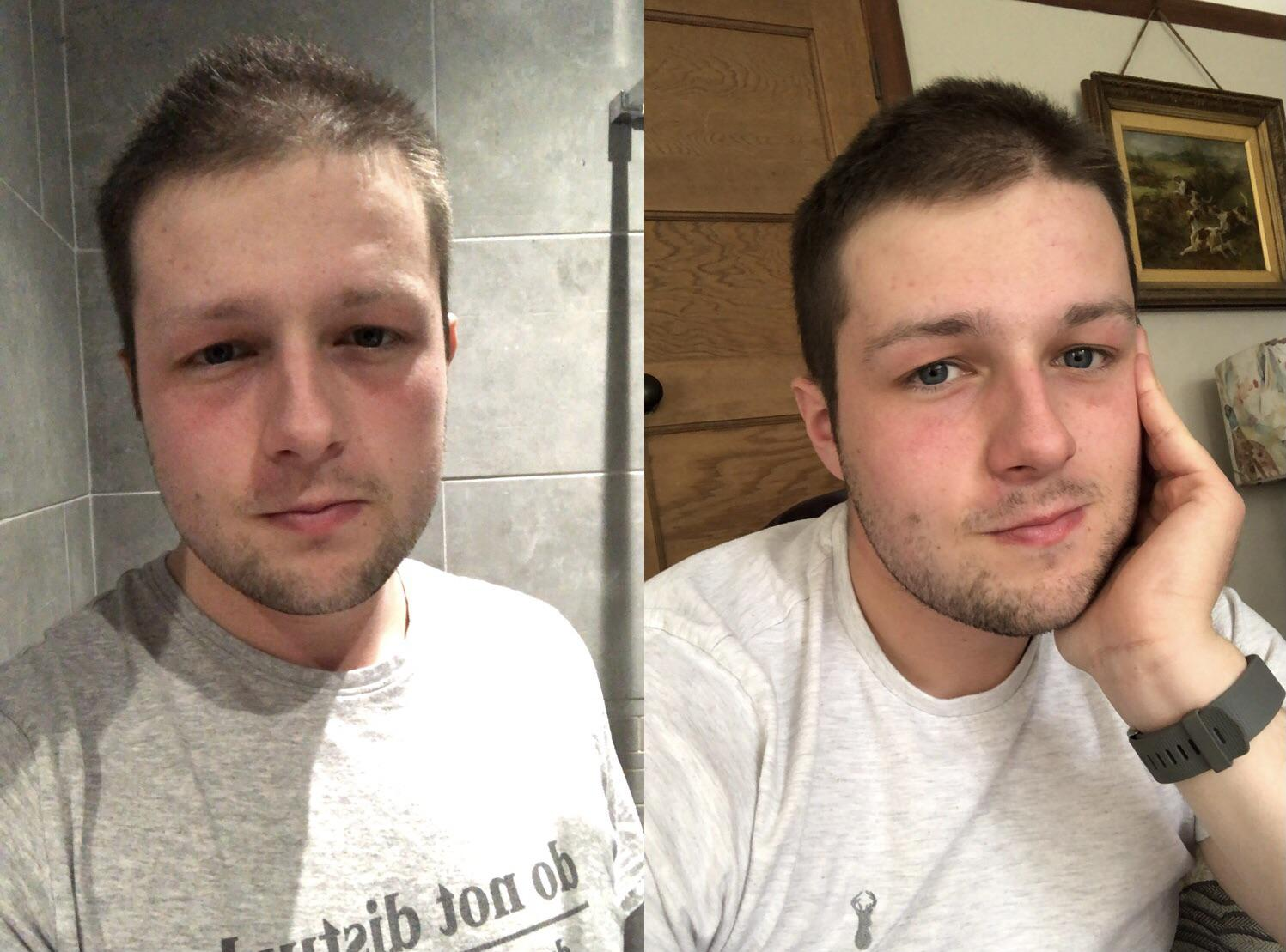 5'10 Male Progress Pics of 11 lbs Weight Loss 216 lbs to 205 lbs