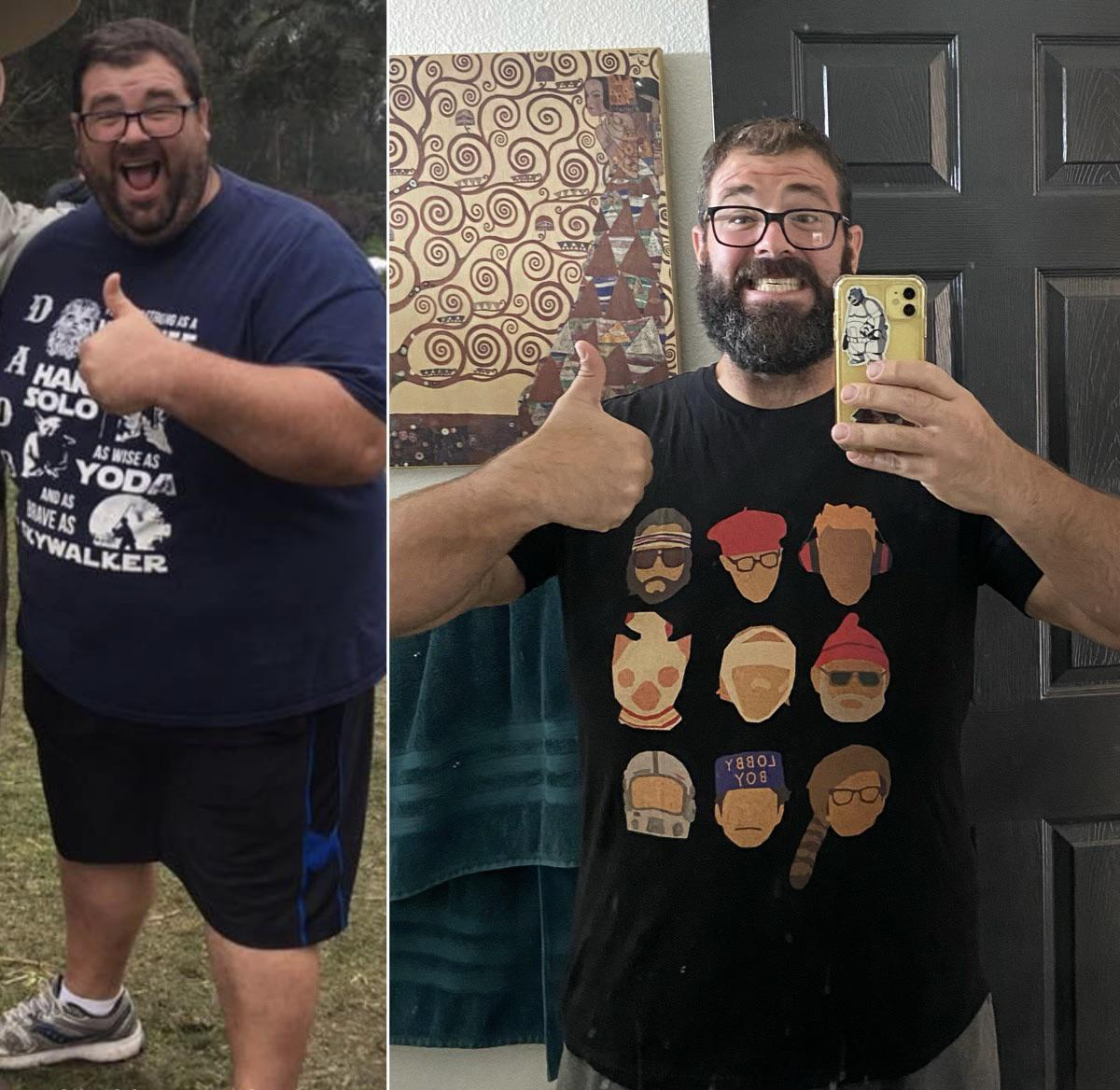 6 foot 1 Male Before and After 200 lbs Weight Loss 482 lbs to 282 lbs