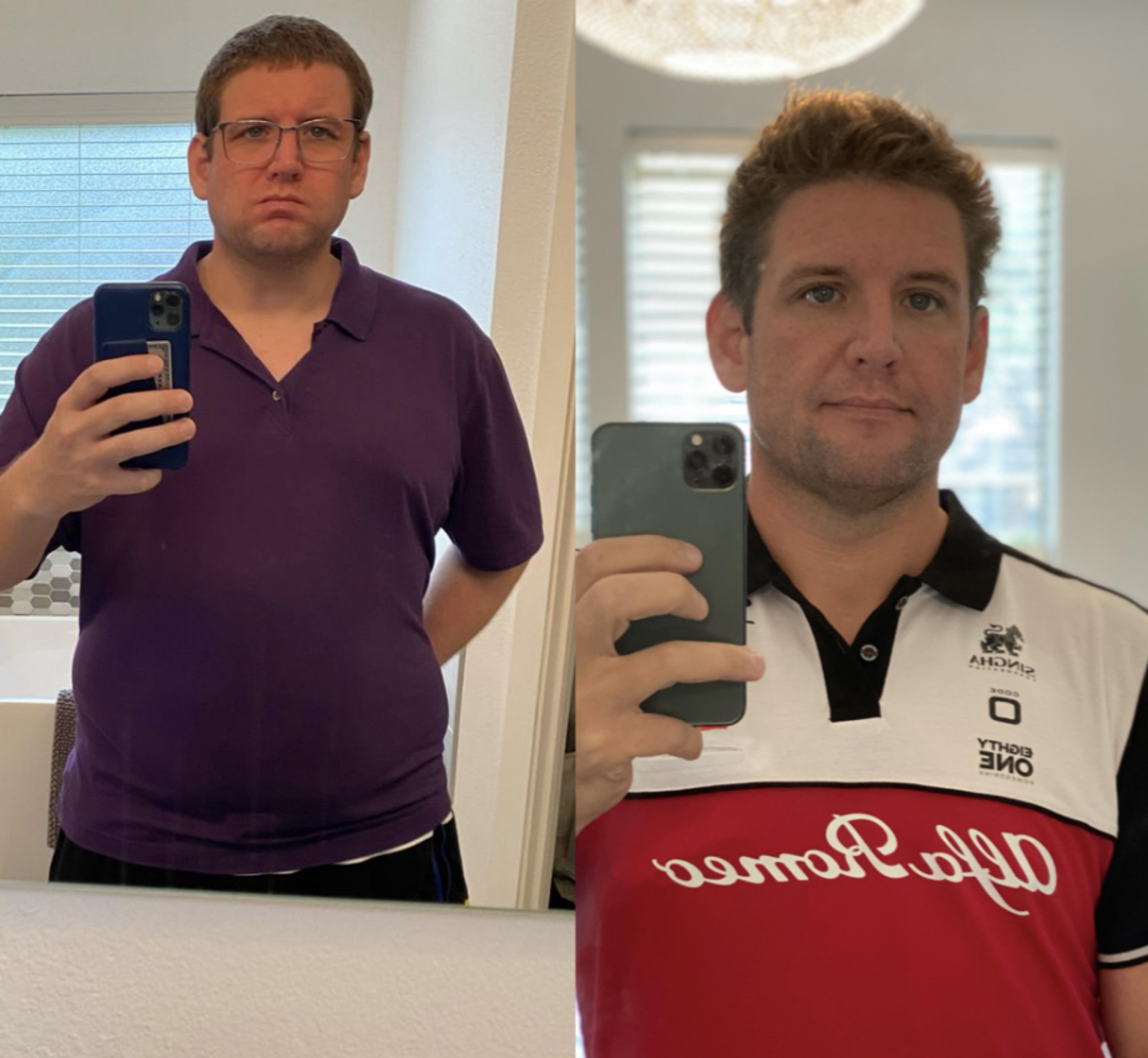 6 feet 2 Male 102 lbs Weight Loss Before and After 331 lbs to 229 lbs