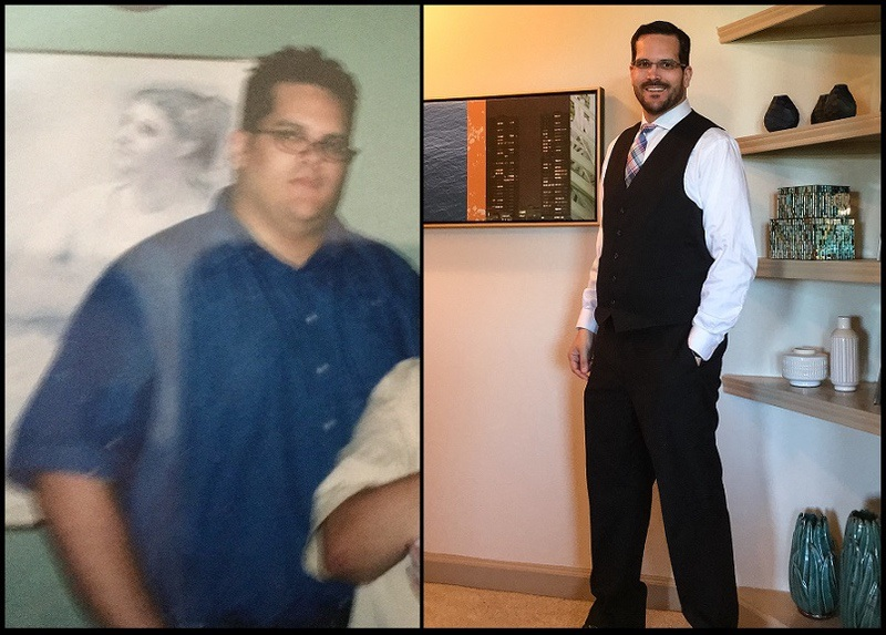 6 foot 4 Male Before and After 172 lbs Fat Loss 410 lbs to 238 lbs