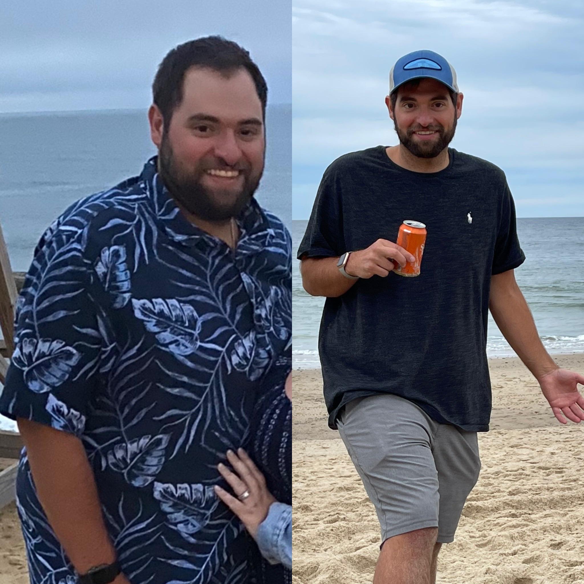 Progress Pics of 100 lbs Weight Loss 5'10 Male 307 lbs to 207 lbs