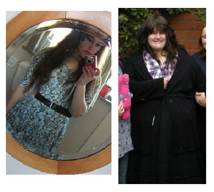 Before and After 210 lbs Weight Loss 5 feet 5 Female 370 lbs to 160 lbs